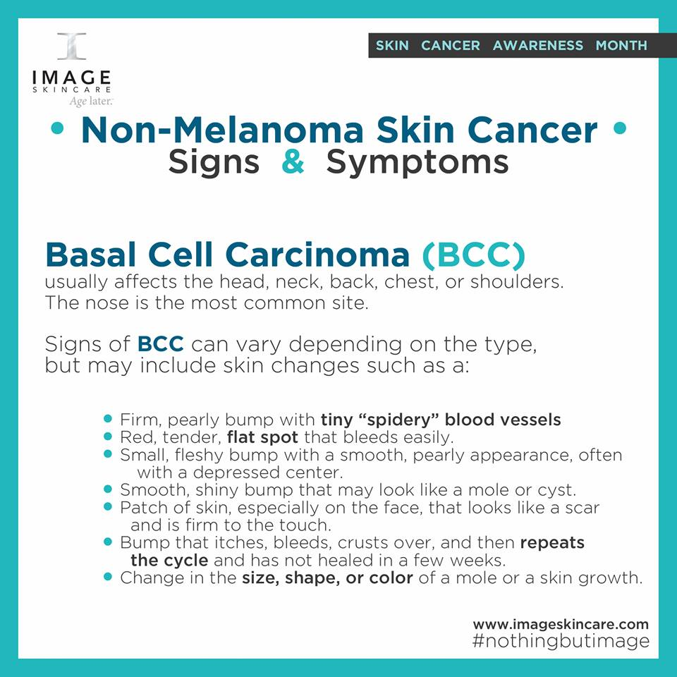 Basal Cell Carcinoma _n